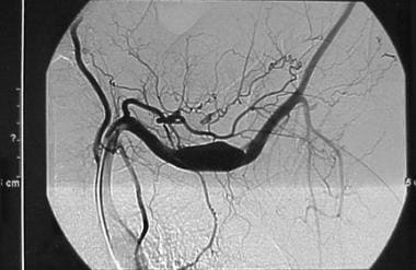 Thoracic outlet obstruction. Angiogram showing sub