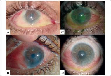 Photographs of right eye after airbag-related alka