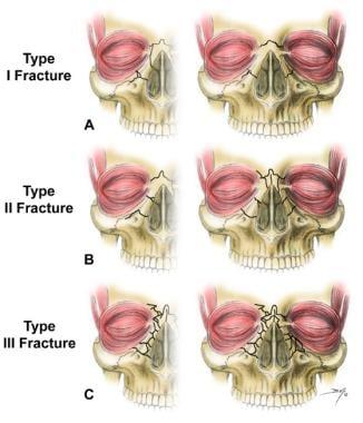 Nasoorbitoethmoid complex fractures are classified