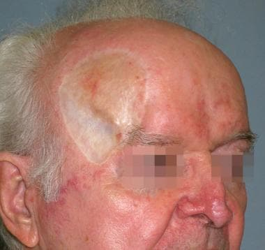 Split-thickness skin graft used for temple reconst