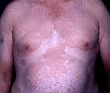 Some patients present with extensive tinea versico
