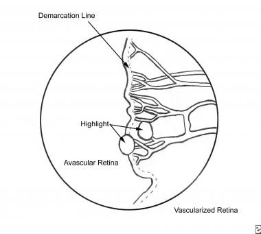 Stage I retinopathy of prematurity.