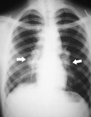 Sarcoidosis in a 20-year-old, asymptomatic woman.
