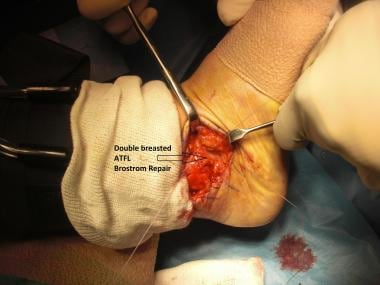 Brostrom-Gould repair. Double-breasted anterior ta