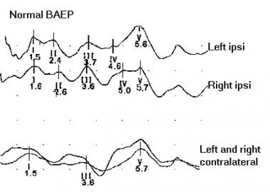 Normal brainstem auditory evoked potentials (BAEP)