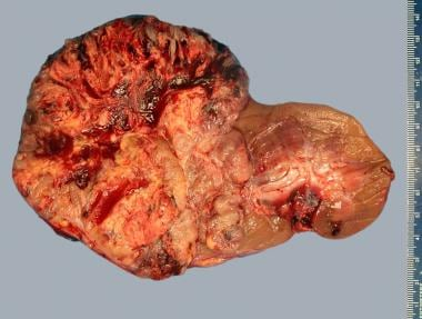 Xp11.2 translocation-associated renal cell carcino