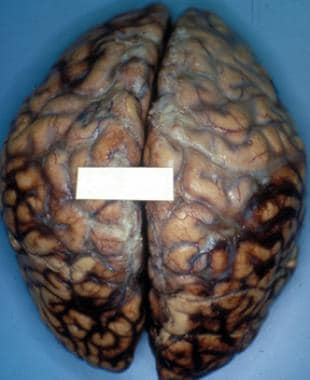 Brain specimen from a 32-year-old man who was the