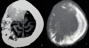 Transverse axial CT on brain and bone windows show
