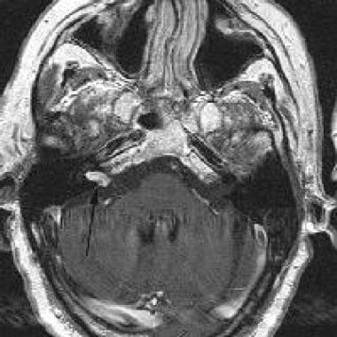 Magnetic resonance image (MRI) in a 62-year-old ma