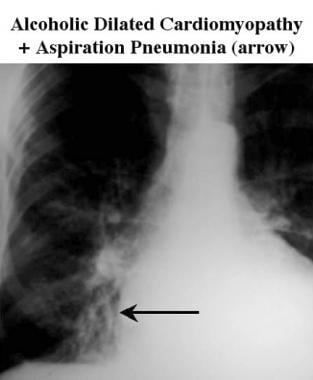 Magnified right chest radiograph shows an area of
