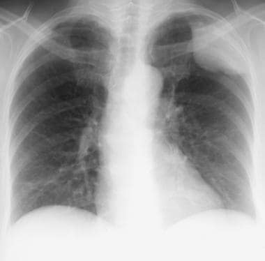 Posteroanterior chest radiograph in a 70-year-old