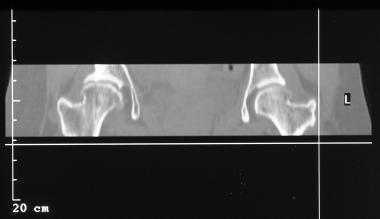 Legg-Calvé-Perthes disease. Coronal reconstruction