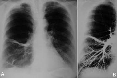 (A) Anteroposterior chest radiograph shows increas