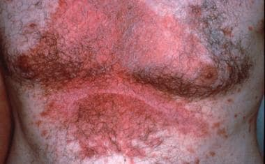 Seborrheic dermatitis may affect any hair-bearing