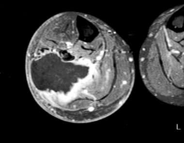 MRI is used to demonstrate involvement of critical