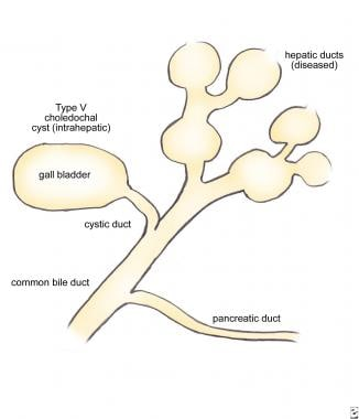 Type V choledochal cyst (intrahepatic, Caroli dise