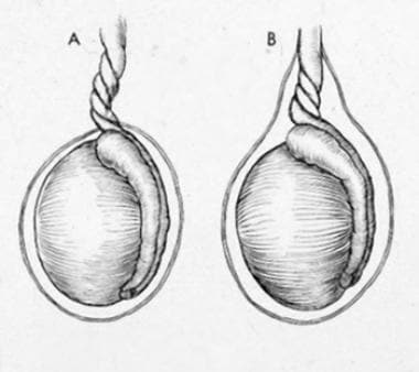 Testicular torsion: (A) extravaginal; (B) intravag