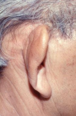 Floppy ear. Courtesy of the University of Washingt