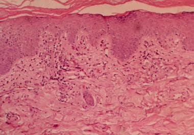 Histopathology of dermatomyositis is interface der