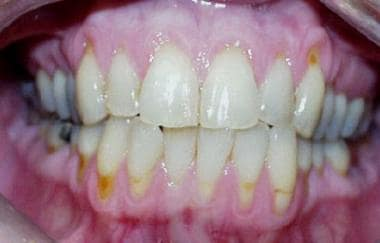 Severe periodontal disease. Loss of the gingival t