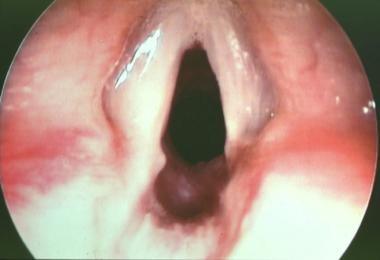 Postoperative view. Some mild residual posterior s