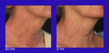 Poikiloderma on the neck before and after two 585-