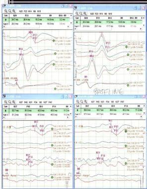 Normal baseline SSEPs. Left median on upper left c