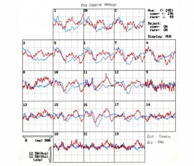 Auditory cognitive evoked potentials recorded in r