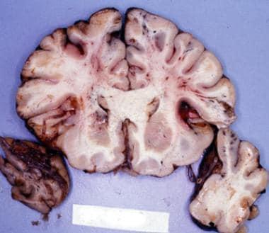 Coronal section of the brain shows streak hemorrha