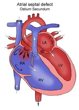 Anatomy of atrial septal defect. This figure shows