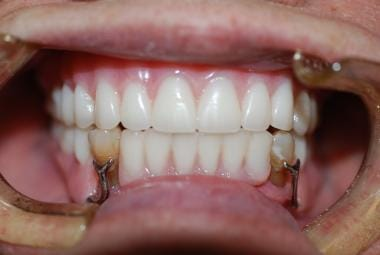 Maxillary complete acrylic denture and mandibular