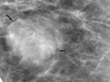 Breast cancer, ultrasonography. Spot magnification