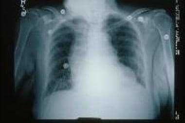 Chest radiograph shows signs of congestive heart f