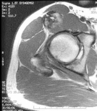 Axial, T1-weighted magnetic resonance image throug