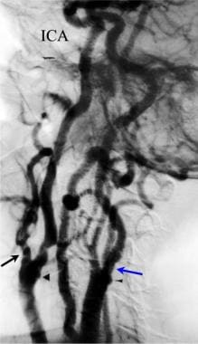 Thoracic arch angiography was performed with a 5F