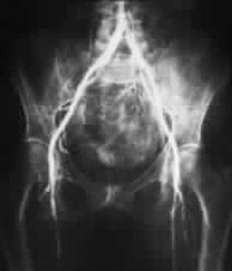 Lumbar angiogram showing stenosis and occlusion of
