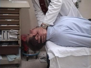 Epley maneuver. The patient's head should be at 45