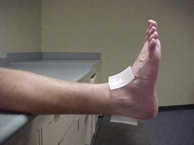 Ankle taping and bracing. Lateral view of correct
