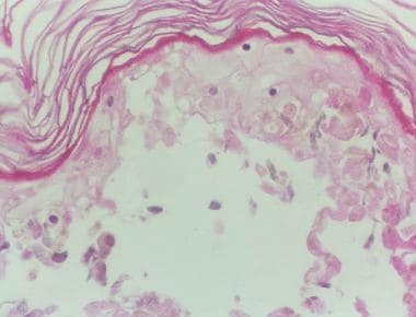 Confluent necrosis of the epidermis in toxic epide