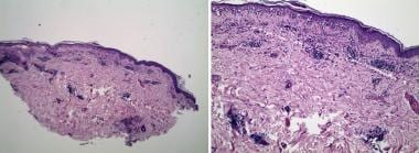 Biopsy shows sparse superficial and deep perivascu