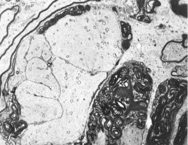 Microscopic demonstration of demyelination in prim
