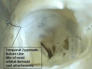 Temporal-zygomatic suture line on the lateral orbi