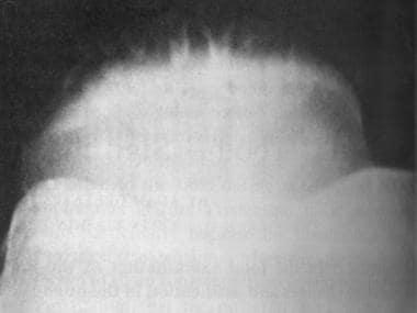 Toothlike ridging of the anterosuperior patella. R