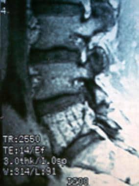 MRI (sagittal cut) illustrating the jailhouse appe