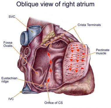 Anatomy of classic counterclockwise atrial flutter