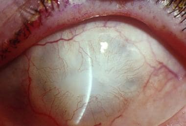 Complete cicatrization of the corneal surface.