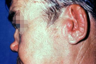 Close-up view of auricular cartilage damage second