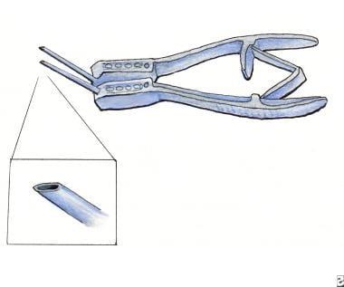 Rapitrach dilating forceps.