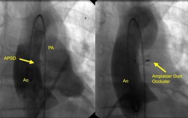 Angiogram of a small-to-moderate aortopulmonary se