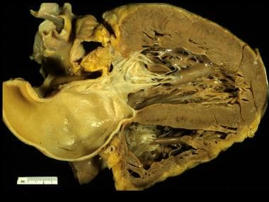 Coronal section with concentric left ventricular h